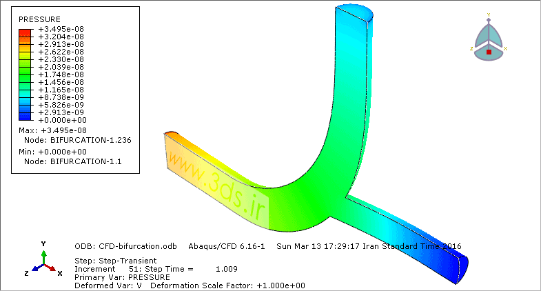 کانتور فشار در تحلیل CFD جریان خون در مجرای دوراهی رگ توسط آباکوس