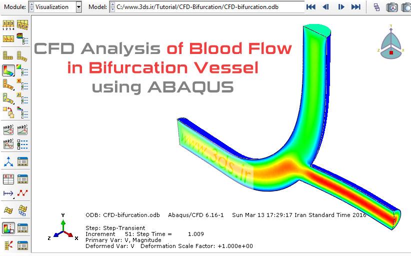 تحلیل CFD جریان خون در مجرای دوراهی رگ توسط آباکوس